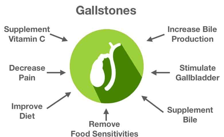 Natural gallstones treatments in Guelph - Guelph Naturopathic